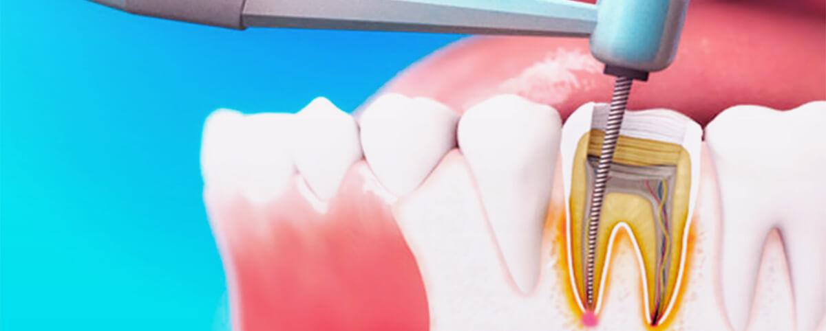 Эндодонтическое лечение или лечение корневых каналов фото ( lechenie kanalov )